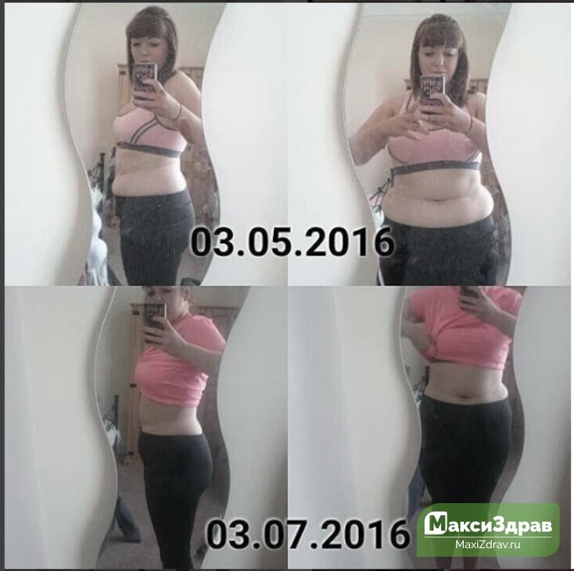 лечения голодание отзывы результаты фото до и после оформления